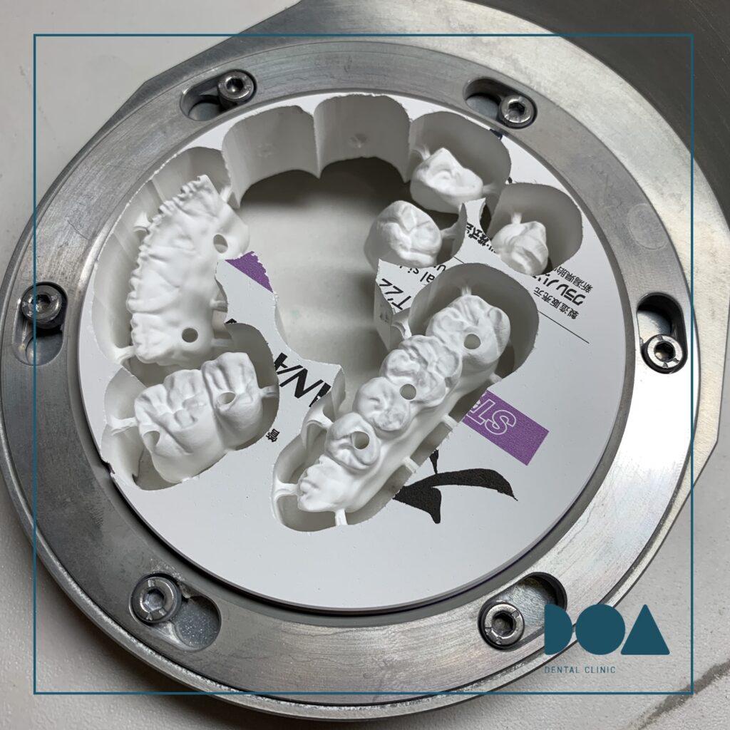 Zirconio Monolitico tecnologia CAD CAM