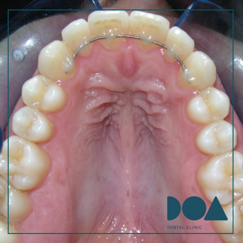 Retencion fija ortodoncia superior