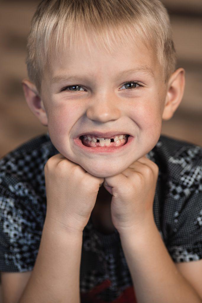 endodoncia en niños