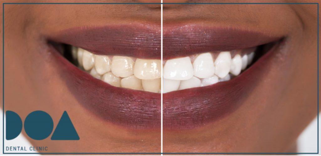 ¿qué debemos saber de los blanqueamientos dentales?