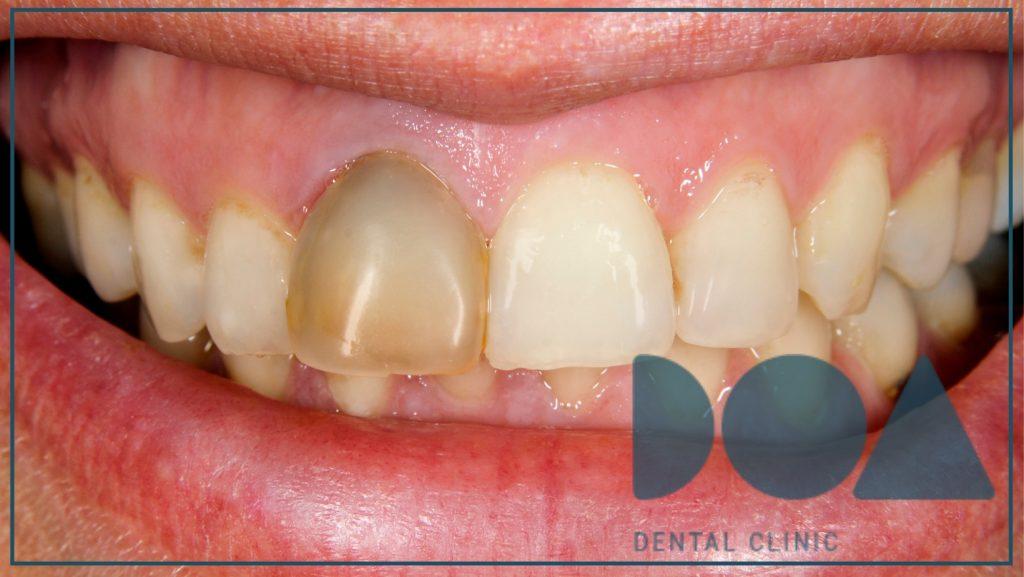 ¿qué es el blanqueamiento dental interno?